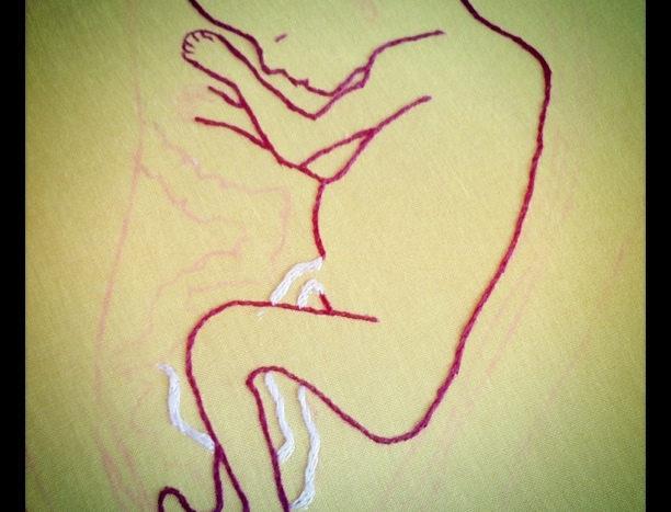 Welche Massnahmen am ehesten Teenager-Schwangerschaften reduzieren können